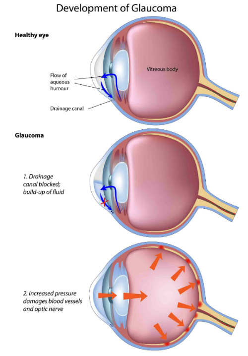 glaucoma resized