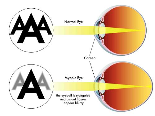 miopia resized