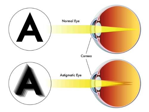 astigmatismo resized