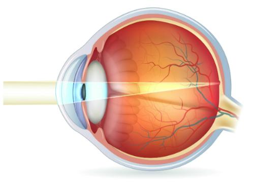 occhio emmetrope resized